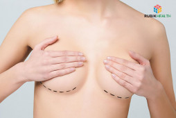 Breast Augmentation with round implants (Mentor Silicone) - Less then 400 ml.