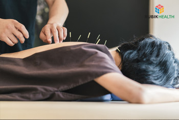 Acupuncture for Office Syndrome