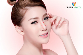 Open Rhinoplasty with Ear Cartilage (Korea Silicone)