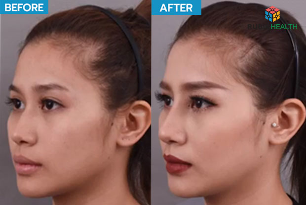 Nose silicone surgery - remove nose hump