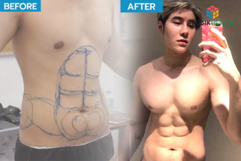 The Six-pack abs surgery by Masterpiece Hospital