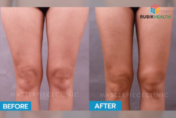 Body Liposuction by Masterpiece Hospital
